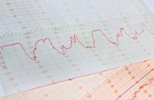 waarden cholesterol